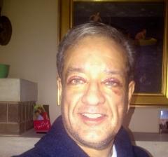 eugene eye surgery day 3 b